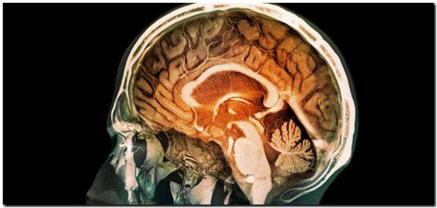 mozgova organizacia